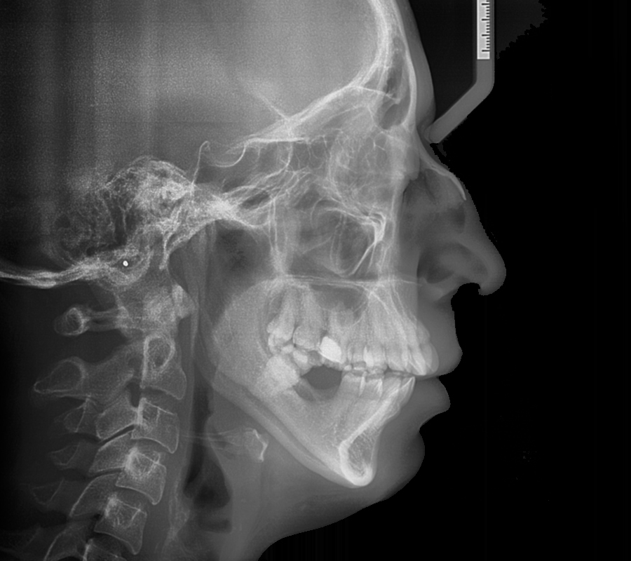 radiologia-villa-madero-cefalograma